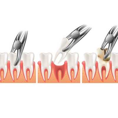 Tooth-Extractions1